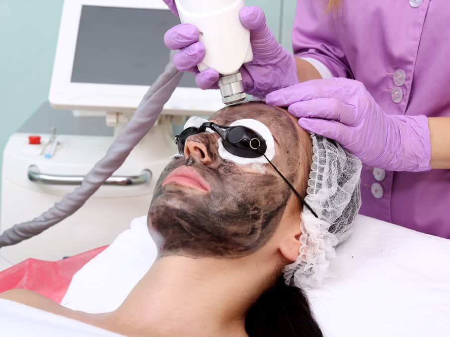Carbon Laser Treatment